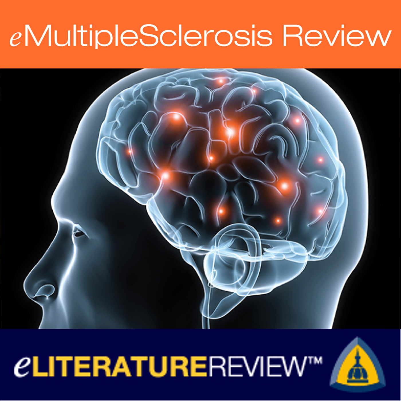 eMultipleSclerosis Review